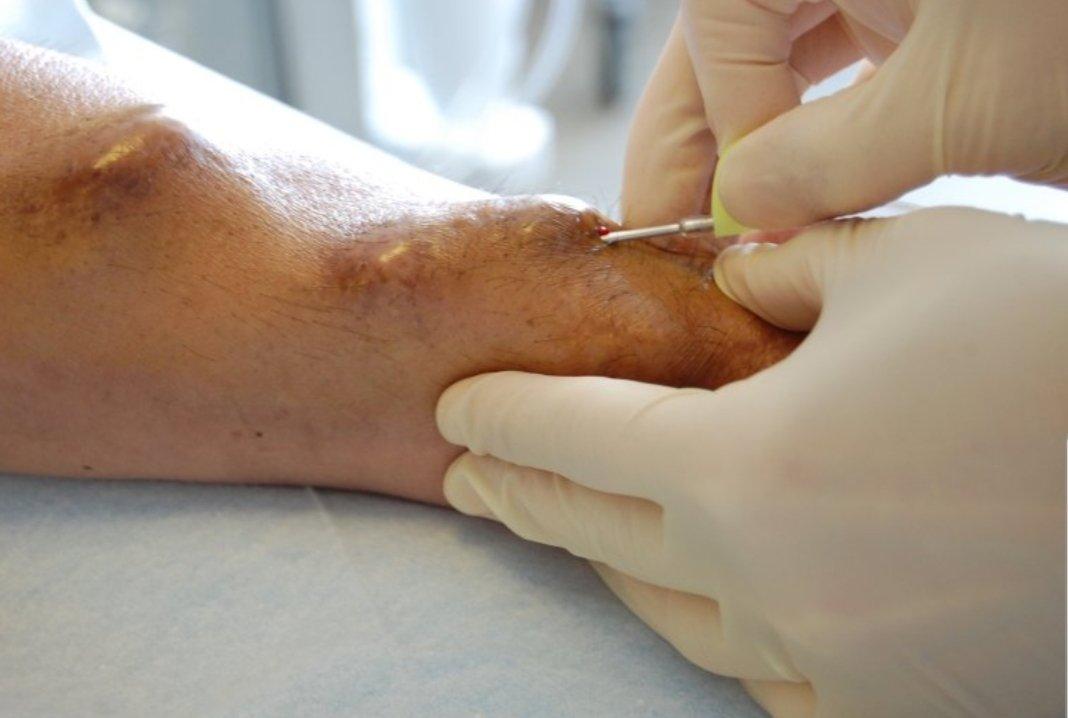 Fistule arterio-veineuse
